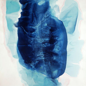 Coronary Blues by Fintan Whelan