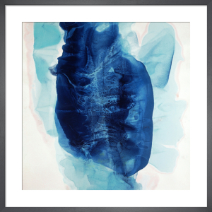 Coronary Blues by Fintan Whelan